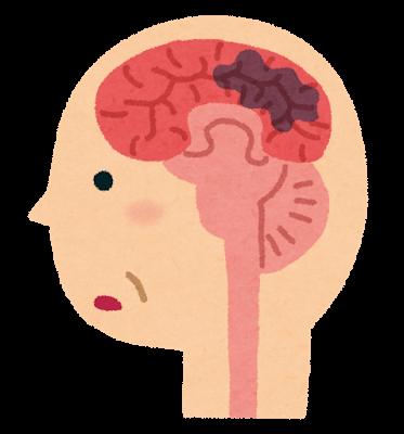AVM 脳動静脈奇形とは 治療法、経験談の治療。気付かない人もいる?